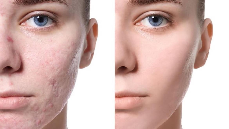 Tratamiento para acné y cicatrices